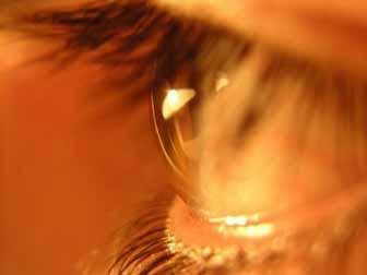 Ayurvedic Eyewash